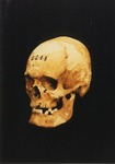 Photograph of Lewis Powell Skull